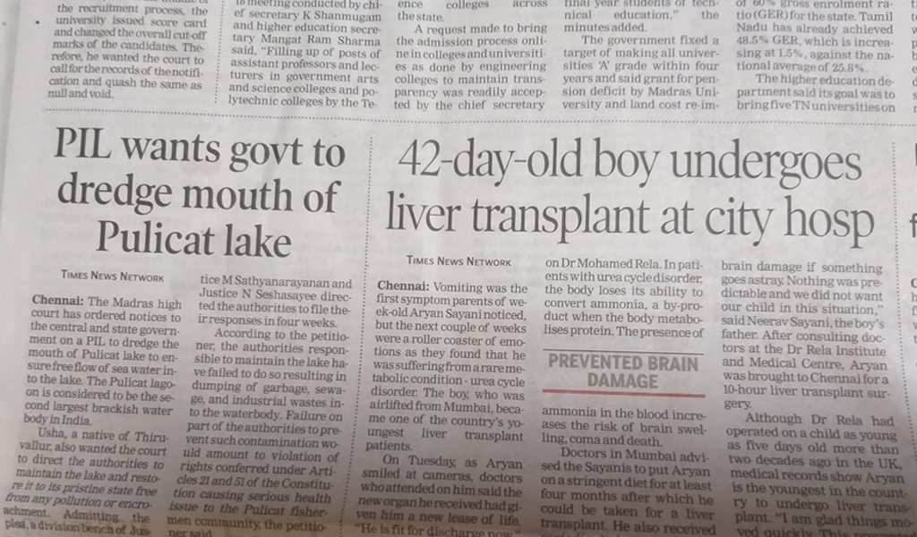 One Month Baby Successful Liver Transplantation